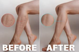 Sclerotherapy Before and After Image