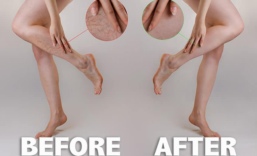 Sclerotherapy Treatment Before and After Image